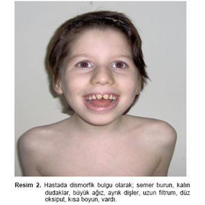http://wwwi.GlobalPiyasa.com/lib/Urun/125/9a5724a0baf8f843bf6288ef320dbd90_1.jpg