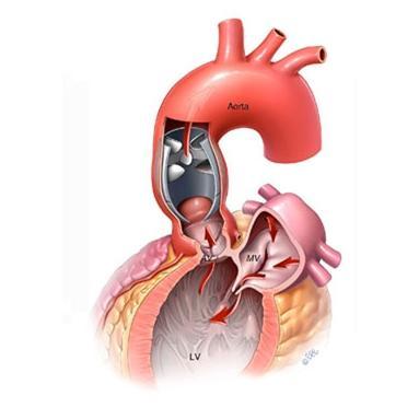 205387-Heart Support Device-Misal Tasarim, Danismanlik, Makine, Medikal, Ithalat Ihracat San. Ve Tic. Ltd. Sti.