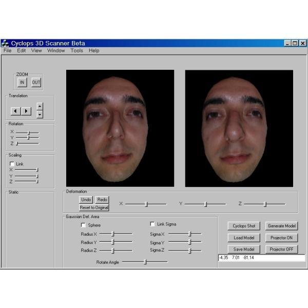 34283-Cyclops 3-d scanner (surgical planning in plastic surgery)-Pars AR-GE Bilgi Teknolojileri Elektronik Muhendislik ve Dan. Hiz. San. ve Tic. Ltd.