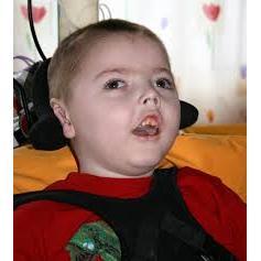 67727-West sendromu nedir tedavisi-Sezgicem Özel Eğitim ve Rehabilitasyon Merkezi & Özel Eğitim Okulu